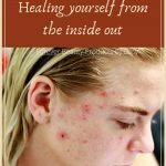 How to Help Acne