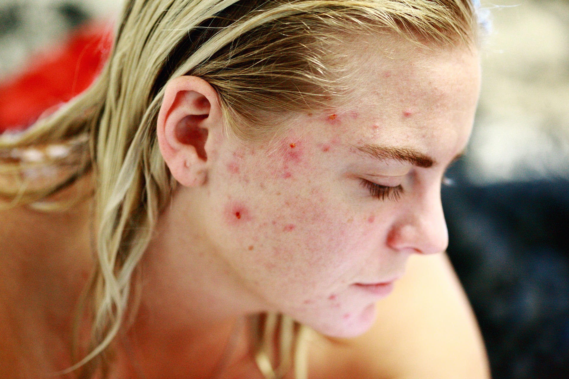 How to Stop Acne
