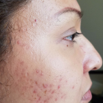 The best acne treatment, you start to see the difference the first week. Helps get rid of blackheads, clogged pores and enlarged pores. Dark spots start to fade away. foreverbeautyproductsbylucy.com