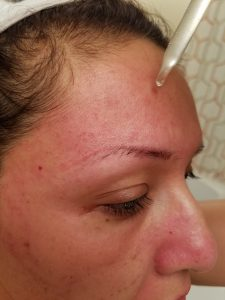 How To Use A Derma Roller For Acne