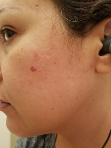 How To Use A Derma Roller For Acne Scars