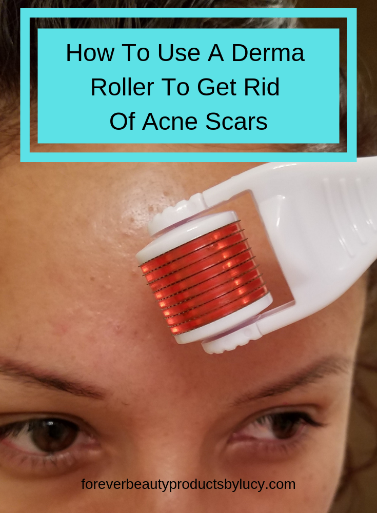 How to Use A Derma Roller to Remove Acne Scars | How To Clear Acne Scars At Home | How To Remove Scars Caused By Cystic Acne. Learn a DIY acne scar treatment done at home & how to use a derma roller. See what you will need to get started & what needs to be done after you have derma rolled. See micro needling before and after pictures of my journey on removing acne scars. See how it really works. Learn how to remove acne scars with the derma roller & use the proper products for acne scars.