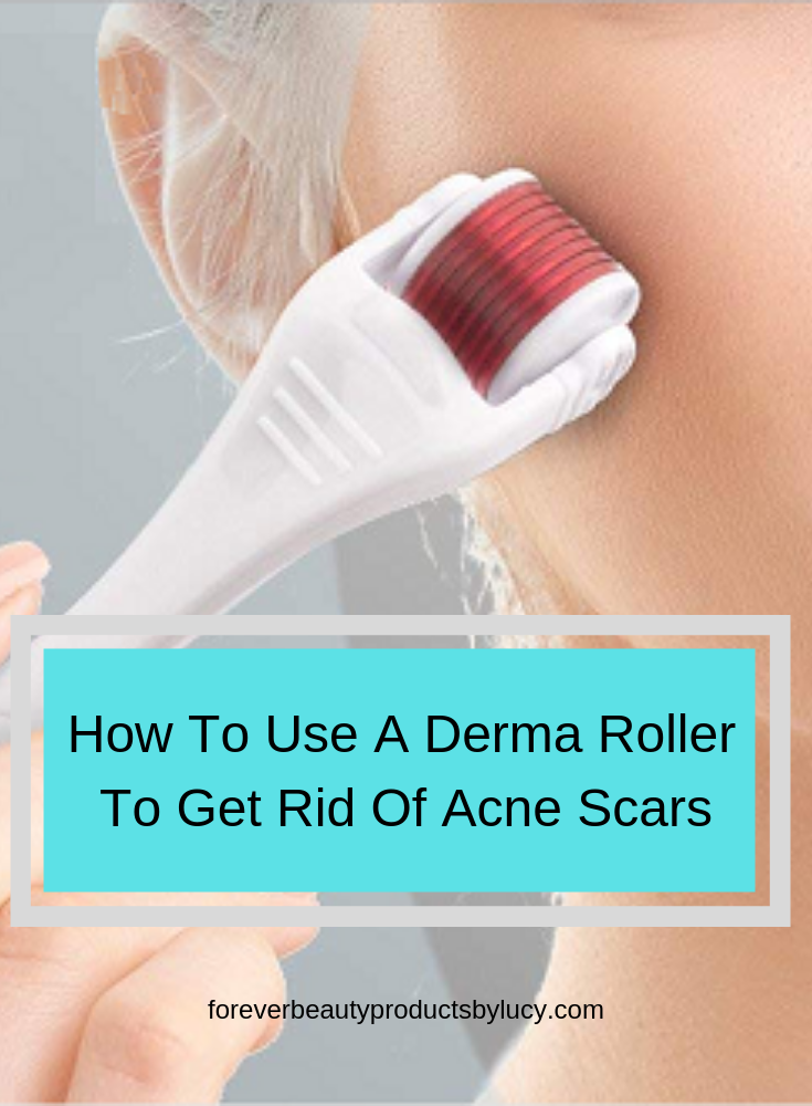 How to use a derma roller to Remove Acne Scars | Acne Scar Treatment Products | Here I will show you step by step on how to use a derma roller to cure acne scars, what you will need to get started and what needs to be done after you have derma rolled your skin. Acne scar treatment DIY from the comfort of your home. No need to see a specialist. See derma roller before and after pictures of just how great this tool works.