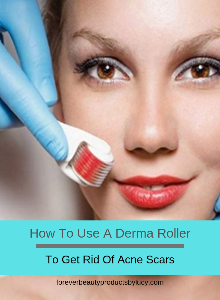 How To Use A Derma Roller For Acne Scars | Acne Scarring Treatment With Micro Needling At Home | Removing & lightening acne scars can be done with a derma roller & with the proper skin care products. You will see improvement to your skin very quickly. Get step by step on how to use a derma roller, what you need & how to care for your skin after you have derma rolled. How to remove acne scars using a derma roller & how to prevent scarring from cystic acne.