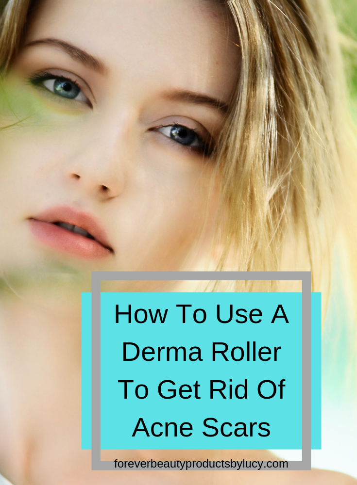 How To Use A Derma Roller For Acne Scars | Acne Scarring Treatment With Micro Needling At Home | You can do this from the comfort of your home. Removing and lightening acne scars can be done with the derma roller and with the proper skin care products. You will see improvement to your skin very quickly. Get step by step on how to use a derma roller, what you will need and how to care for your skin after you have derma rolled. How to remove acne scars using a derma roller.